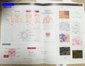 ポーラ肌分析