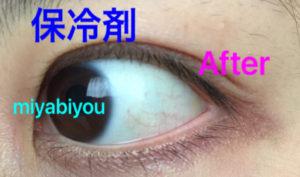 充血が少し改善した目