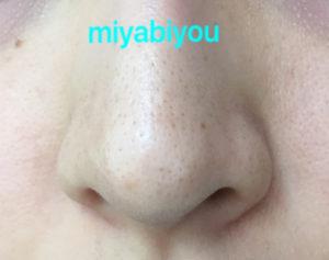 小鼻の黒ずみ