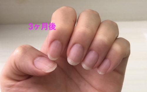 爪 ピンクの部分伸びた